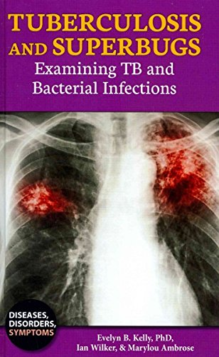 Read Online Tuberculosis and Superbugs: Examining TB and Bacterial Infections (Diseases, Disorders, Symptoms) pdf