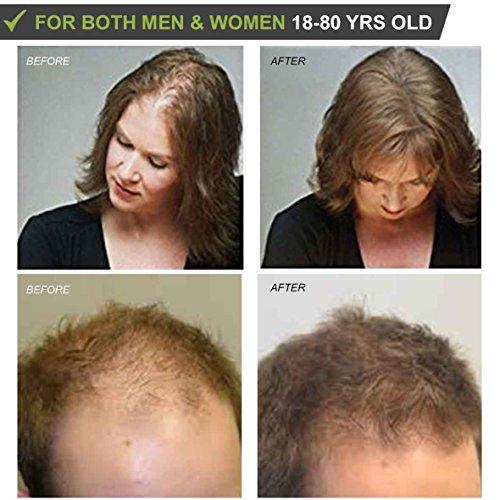 Láser Tratamiento Eléctrico Masaje Peine con Luz Infrarroja y Terapia de Vibración. Detiene la pérdida de cabello, estimula el crecimiento del cabello, ...