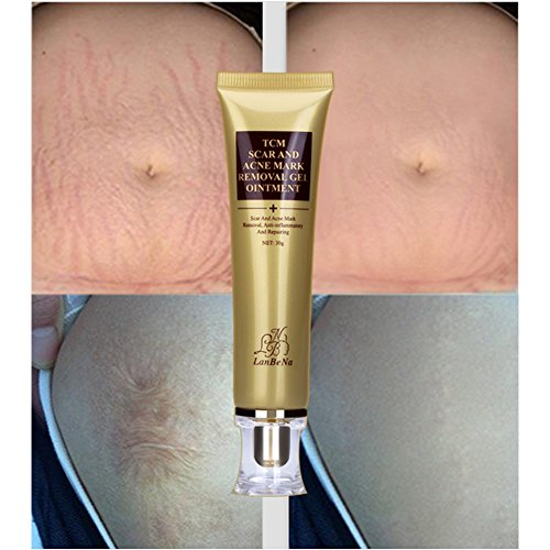 Amazon Com Acne Scar Removal Cream Stretch Marks Face Skin Repair Cream Shrink Pores Gel Fade Scar Marks Acne Skin Care 30ml Beauty