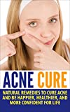 Acne Cure: Natural Remedies to Cure Acne and Be Happier, Healthier, and More Confident for Life (acne remedy, pimples, blackheads, acne no more)