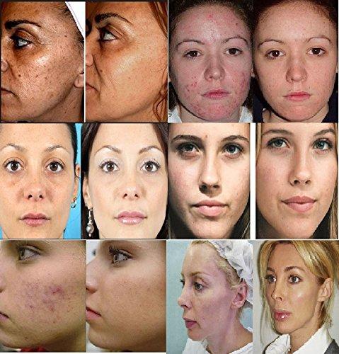Limpiador facial ultrasónico, ideal para hombres y mujeres: Amazon.es: Belleza