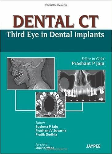 Dental CT Third Eye In Dental Implants by Prashant P Jaju (2012-12 ...