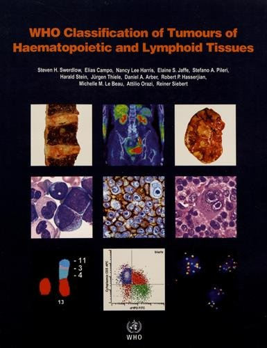 WHO Classification of Tumours of Haematopoietic and Lymphoid Tissues (Medicine)