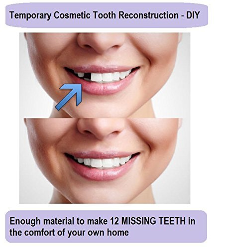 Diy denture repair kit the best amazon price in savemoney temporary tooth repair kit replace missing diy make 12 teeth dental repair solutioingenieria Image collections