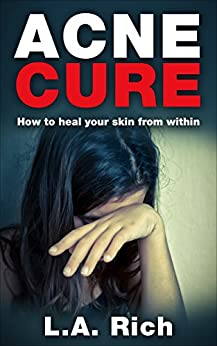 Acne Cure heal your within ebook product image