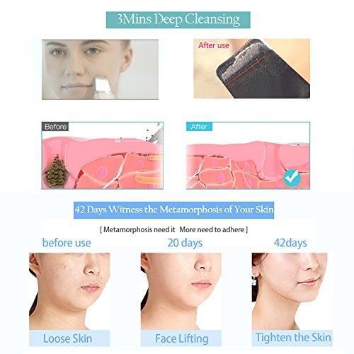 Cosbeauty Ultrasonic Skin Scrubber Spatula Amp Face Electric