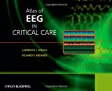 Atlas of EEG in Critical Care, , 0470987863