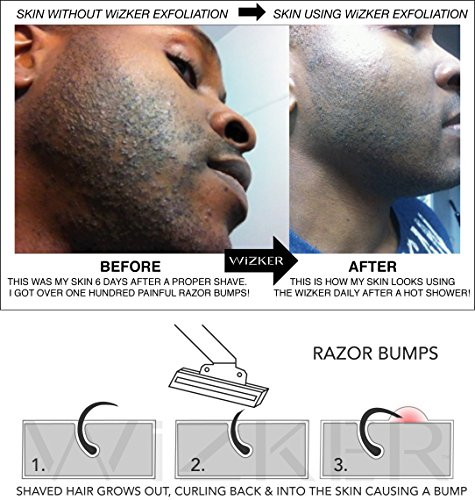 how to avoid razor bumps on head