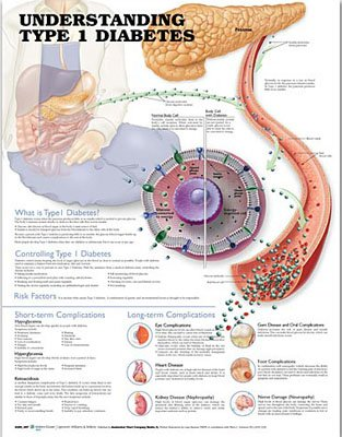Understanding Type 1 Diabetes Anatomical Chart