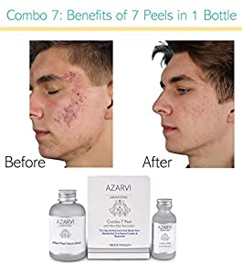 Combo 7 Peel Including After Peel Neutralizer. Made with 7 ingredients: 15% TCA, Salicylic, Glycolic, Lactic, Mandelic, Vitamin C, Resorcinol. Strong Peel for Wrinkles, Acne, Smoker's Skin