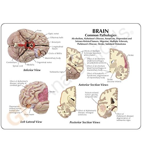 Brain Model Full Size Segmented 4 Parts by GPI Anatomicals (Image #2)