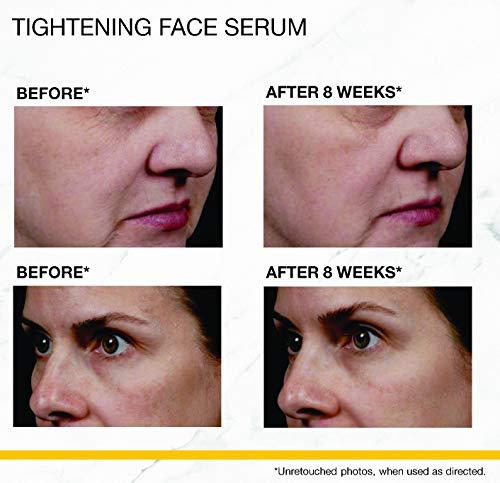 StriVectin Tightening Face Serum, 1.7 Fl Oz