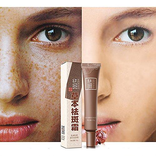 Skin-Whitening Cream, Age Spots & Dark Spot Corrector Skin Lightening & Whitening Age Spot Remover for Face, Hands, Body