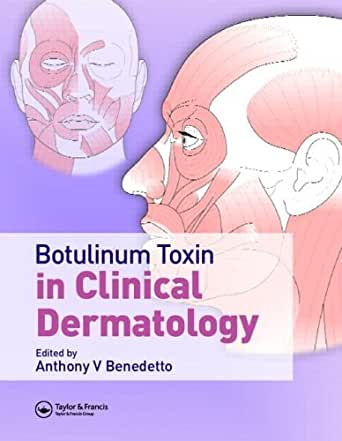 botulinum toxin definition