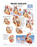 Heart Disease Anatomical Chart, Anatomical Chart Company Staff, 1587792583