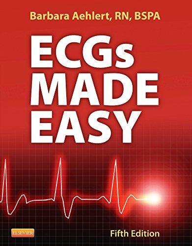 Ecgs Made Easy 5th edition by Aehlert, Barbara (2013) Paperback