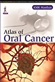 Atlas of Oral Cancer, Masthan, K. M. K., 9351524418