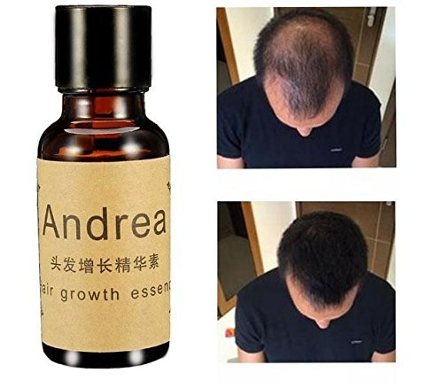 Fast Hair Growth Essence Liquid Pilatory For Men And Women 20ml by shopIdea