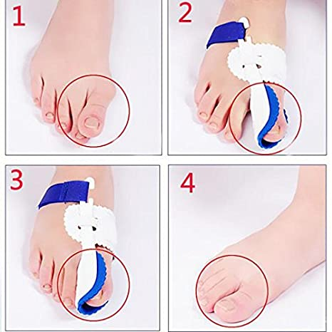 Amazon.com: MagiDeal 1 Pair Big Toe Bunion Straighteners Night Splint Hallux Valgus Pad CorrectorsPain Relief: Health & Personal Care
