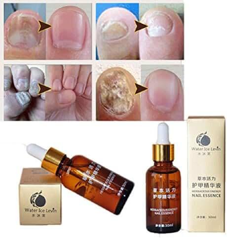 Mchoice Nail Treatment Essence Nail and Foot Whitening Toe Nail Fungus Removal