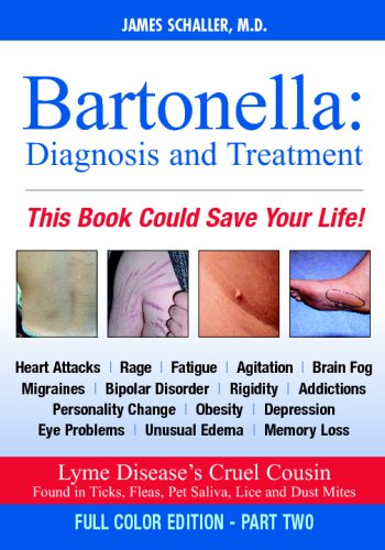 Bartonella  Diagnosis And Treatment  Part 2 Of 2 Full Color Edition  Chuvash Edition
