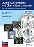 Cranial Neuroimaging and Clinical