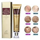Ochioly Acne Scar Removal Cream, Whitening Cream,Skin Repair Face Cream Cure for Acne Spots/Acne Treatment/Blackhead/Stretch Marks/Burn Scar/Pimple Scar 30ml