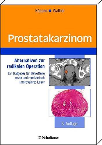 Prostatakarzinom: Alternativen zur radikalen Operation Ein Ratgeber für Betroffene, Ärzte und medizinisch interessierte Leser