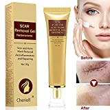 Scar Cream, Acne Scar Removal Cream,Acne Spots Treatment,Stretch Marks Relief and Burns Repair,Face