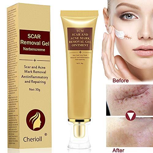 4) Crème contre les cicatrices, Crème anti-acné pour les cicatrices,  traitement contre les taches d acné, Soulagement des vergetures et  réparation des ... eaeee120f83