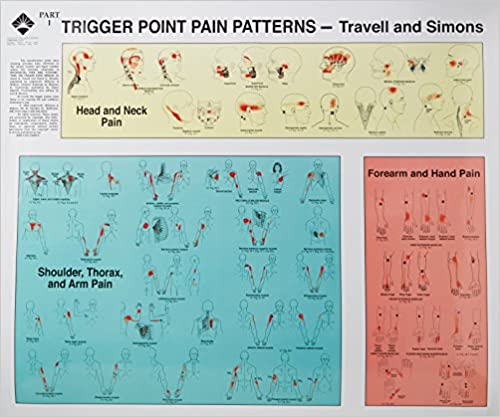 Trigger Point Therapy Poster//Chart Set