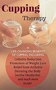 Cupping Therapy: 15 Life-Changing Benefits of Cupping