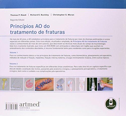 Princípios AO do Tratamento de Fraturas