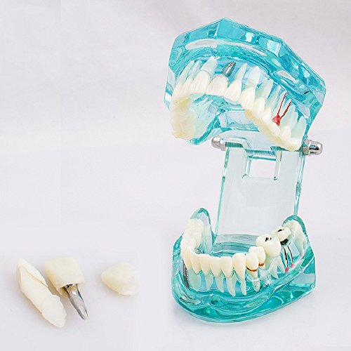 Pevor Transparent Dental Teeth Model Removable Study Disease Tooth Model for Teaching