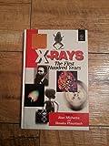 X-Rays 9780471965022