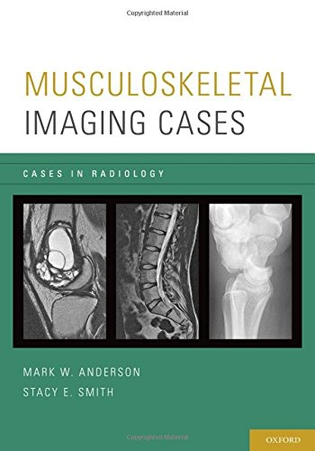 Musculoskeletal Imaging Cases (Cases in Radiology) - http://medicalbooks.filipinodoctors.org