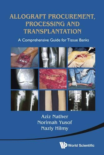 Allograft Procurement, Processing and Transplantation: A Comprehensive Guide for Tissue Bank