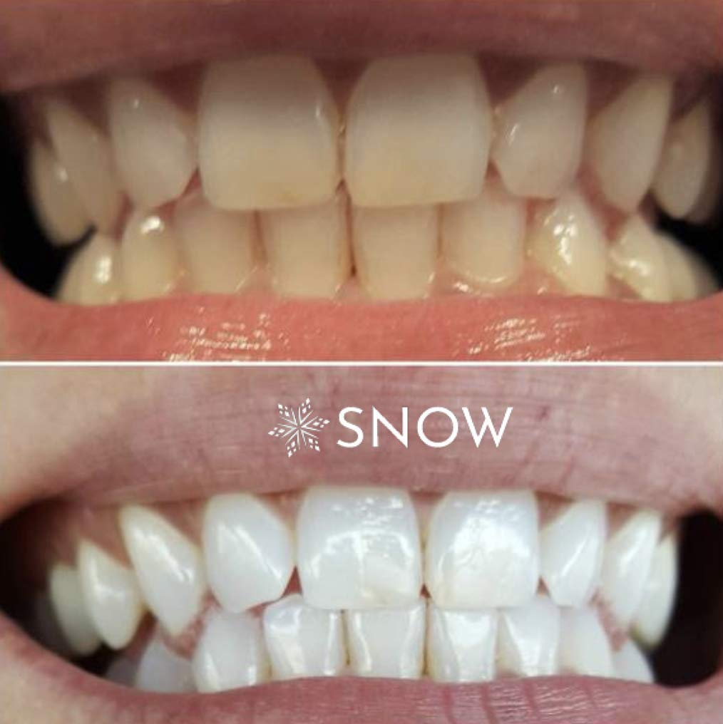 Box Contains Snow Teeth Whitening Kit