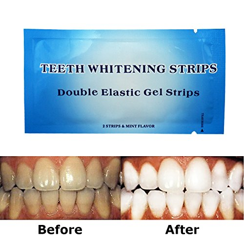 Teeth Whitening Strips - 6% Professional Effects Whitening Strips, 14 Pack 28 Pieces- One Hour Express with Bonus Shade Guide by EZGO