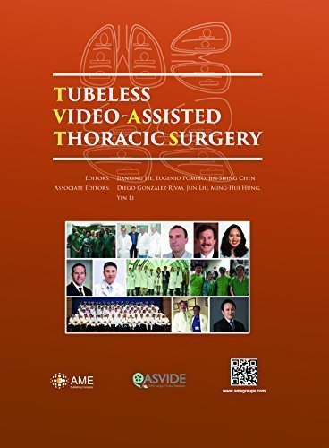Tubeless Video-Assisted Thoracic Surgery by MD Jianxing He (2015-05-04)