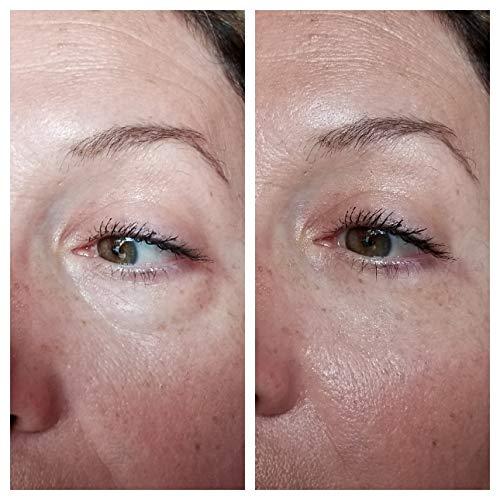 Vitayes Instant Ageback, Ageless Facelift Cream for Instant Eye Bag