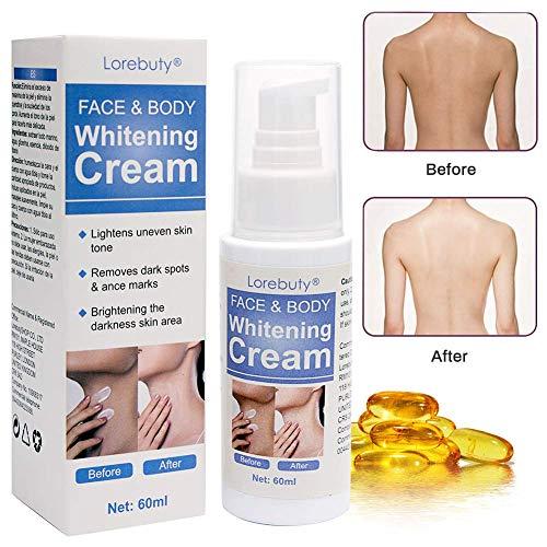 Whitening Cream,Brightening Cream,Skin Lightening Cream,Dark Spot Corrector...