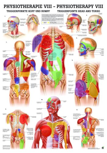 Trigger Points: Head and Torso Laminated Chart ()