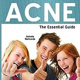 Acne Essential Guide, Antonia Mariconda, 1861440758