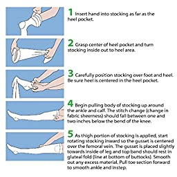 Alimed Anti-embolism Stockings Medi-Pak Thigh-high Large, Regular White Inspection Toe