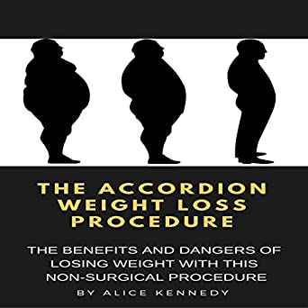 Amazon Com The Accordion Weight Loss Procedure The Benefits And