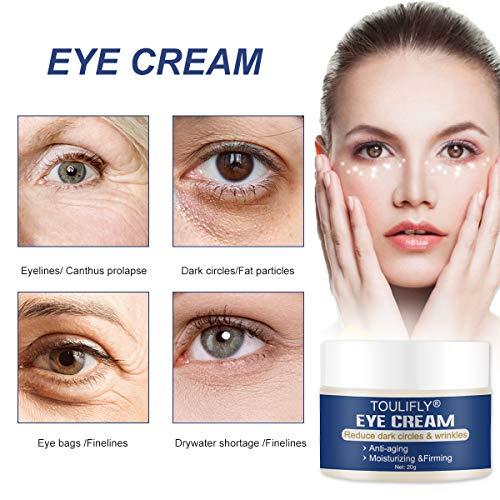 51fv4MgWi1L - Under Eye Cream, Eye Repair Cream, Anti-Aging Eye Cream, Eye Cream for Dark Circles & Puffiness & Under Eye Bags, Nourishes Skin & Fights Wrinkles, Rapid Wrinkle Repair Eye Skin