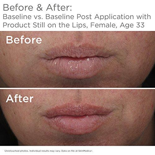 HA5 Smooth & Plump Lip System by SkinMedica #10