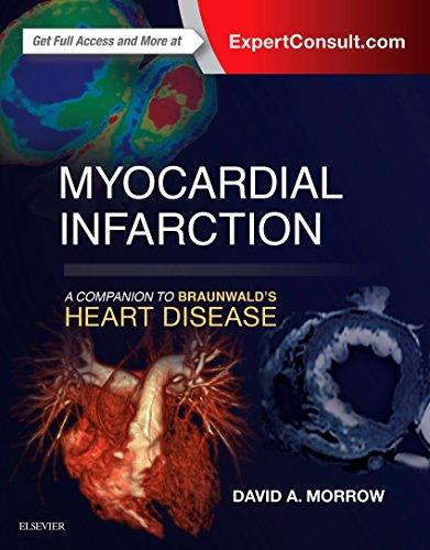Myocardial Infarction  A Companion To Braunwalds Heart Disease