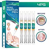 Best Fungal Nail Treatments - Fungus Stop, Anti-Fungal Nail Pen (4 Pack) – Review